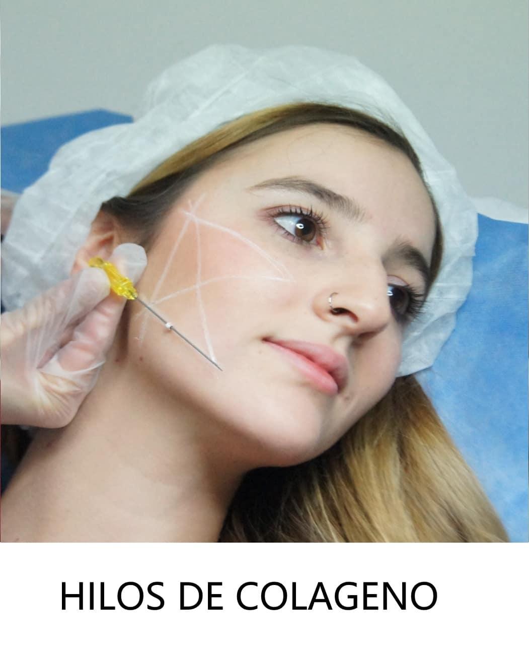 Hilos de colageno CFmedicina